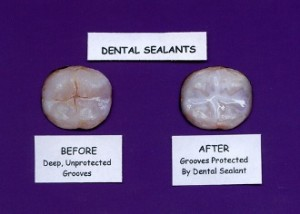 Dental-Sealants-Results